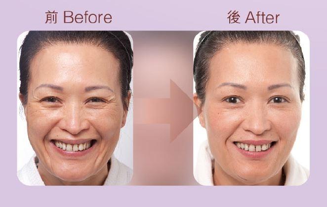 本頁圖片/檔案 - Botox-3