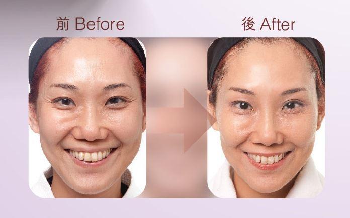 本頁圖片/檔案 - Botox-1